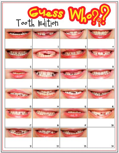Guess Who Tooth Edition